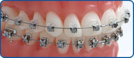 damon-fixed-braces