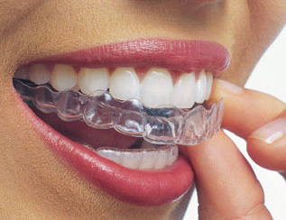 Custom made manufacture to fit your smile